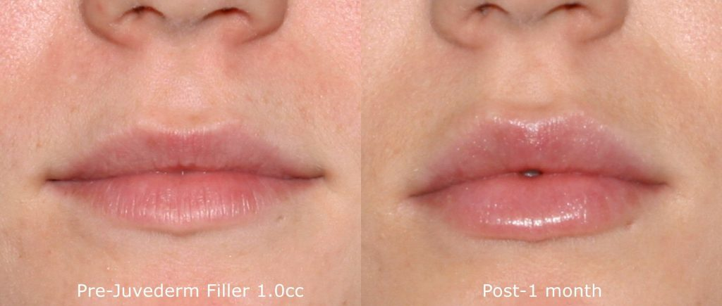 Actual un-retouched patient before and after Juvederm injections to augment the lips by Dr. Fabi. Disclaimer: Results may vary from patient to patient. Results are not guaranteed.