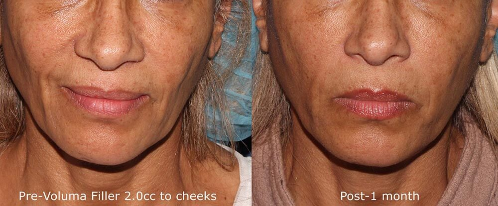 Actual un-retouched patient before and after Voluma injections to augment the cheeks by Dr. Goldman. Disclaimer: Results may vary from patient to patient. Results are not guaranteed.