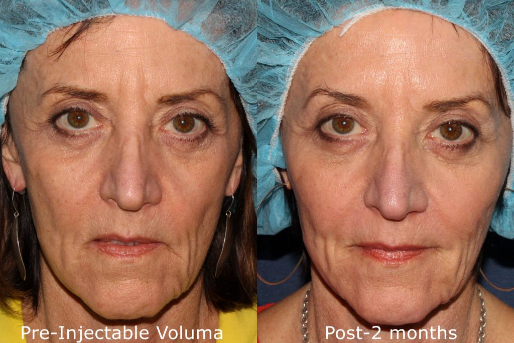 Actual un-retouched patient before and after Voluma injections for cheek augmentation by Dr. Butterwick. Disclaimer: Results may vary from patient to patient. Results are not guaranteed.
