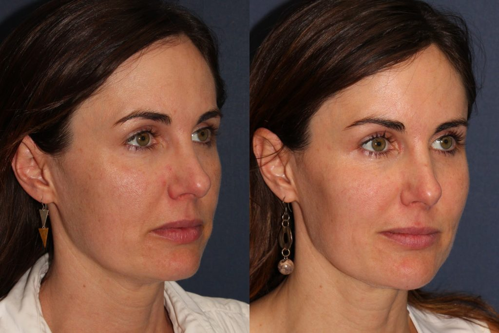 Actual un-retouched patient before and after Juvederm Vollure and Voluma injections to augment the cheeks and chin by Dr. Fabi. Disclaimer: Results may vary from patient to patient. Results are not guaranteed.