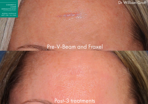 laser scar removal results in San Diego, CA