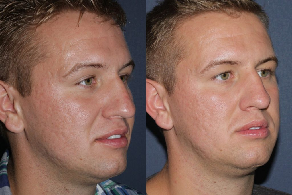 Actual un-retouched patient before and after LaViv filler injections to treat smile lines by Dr. Fabi. Disclaimer: Results may vary from patient to patient. Results are not guaranteed.