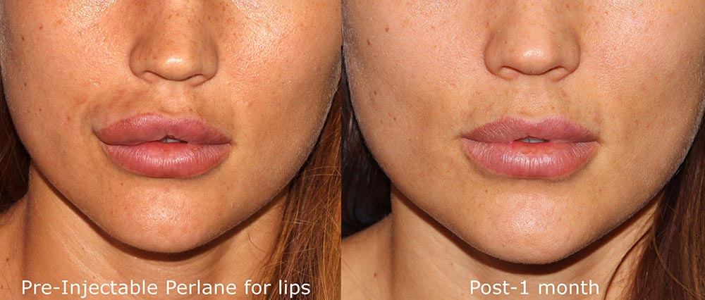 Actual un-retouched patient before and after lip filler correction by Dr. Groff. Disclaimer: Results may vary from patient to patient. Results are not guaranteed.