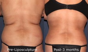 Before and after back image of liposculpture treatment on a female's back and bra rolls performed by Dr. Butterwick at our San Diego medical spa