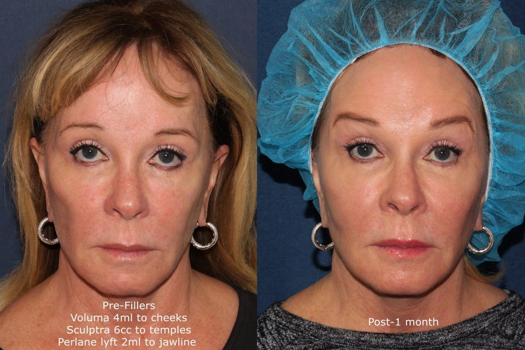 Actual unretouched patient before and after Voluma, Sculptra and Perlane injections for a liquid facelift by Dr. Fabi. Disclaimer: Results may vary from patient to patient. Results are not guaranteed.