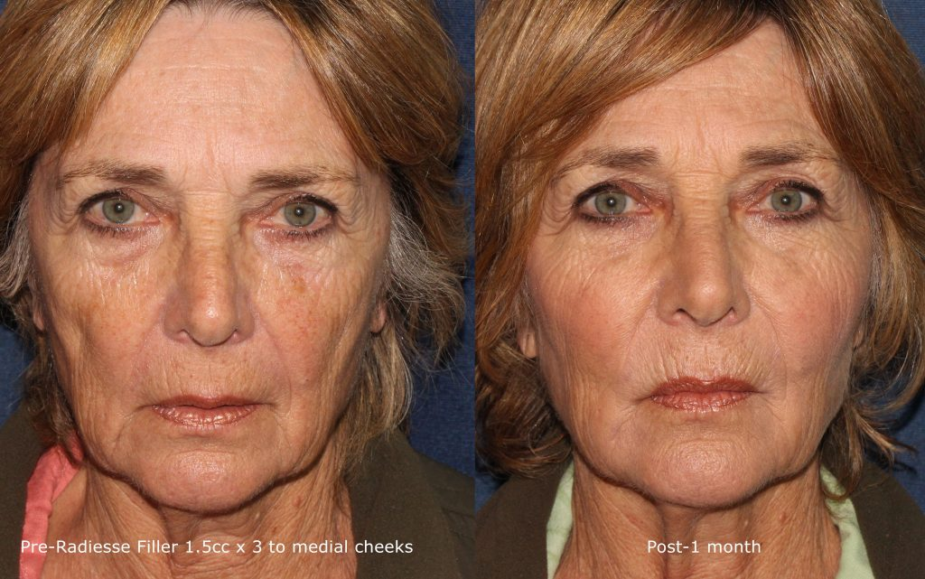 Actual un-retouched patient before and after Radiesse injections for a liquid facelift by Dr. Butterwick. Disclaimer: Results may vary from patient to patient. Results are not guaranteed.