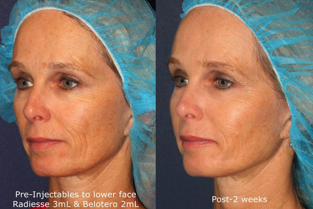 Actual un-retouched patient before and after Radiesse and Belotero injections to reduce wrinkles by Dr. Fabi. Disclaimer: Results may vary from patient to patient. Results are not guaranteed.