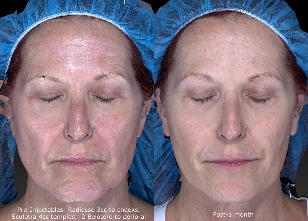 Actual un-retouched patient before and after Radiesse injections for cheek augmentation by Dr. Fabi. Disclaimer: Results may vary from patient to patient. Results are not guaranteed.