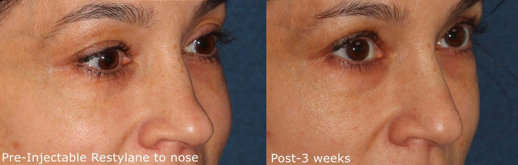 Actual un-retouched patient before and after Restylane injections to reduce nose bump by Dr. Groff. Disclaimer: Results may vary from patient to patient. Results are not guaranteed.