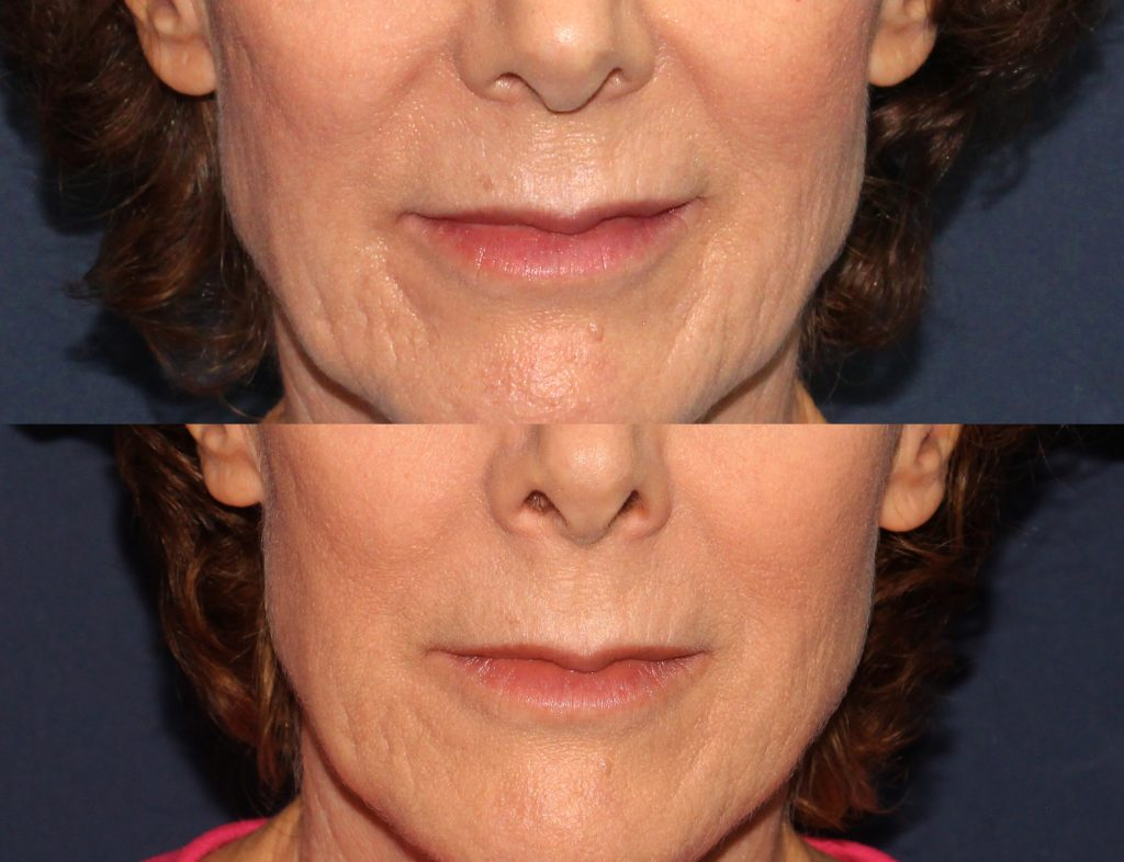 Actual un-retouched patient before and after Restylane injections to treat marionette lines and acne scars by Dr. Fabi. Disclaimer: Results may vary from patient to patient. Results are not guaranteed.