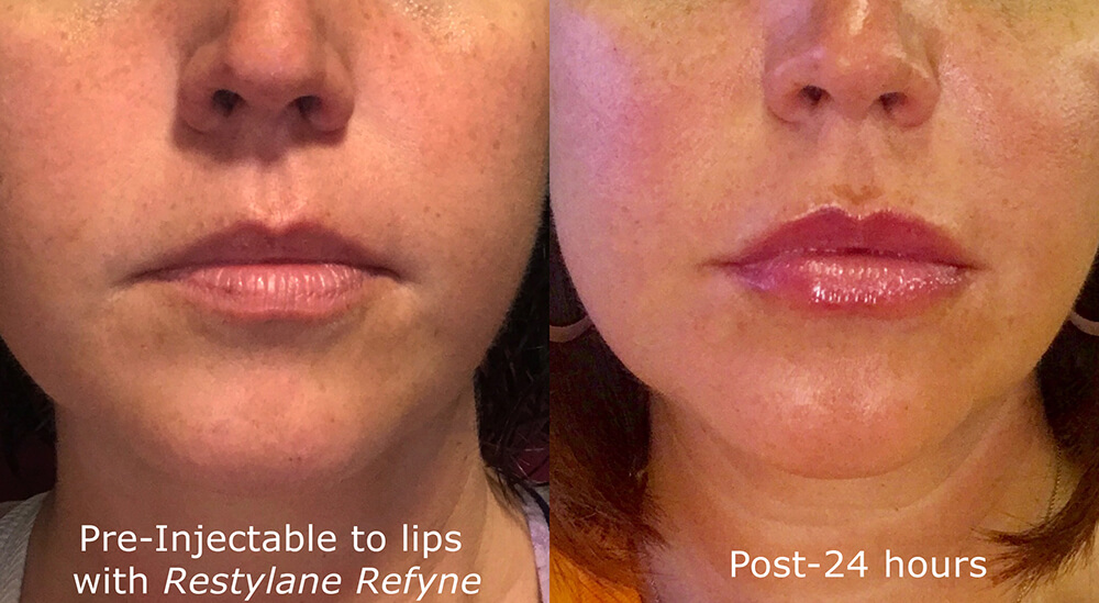 Actual un-retouched patient before and after Restylane Refyne injections to augment the lips by Dr. Goldman. Disclaimer: Results may vary from patient to patient. Results are not guaranteed.
