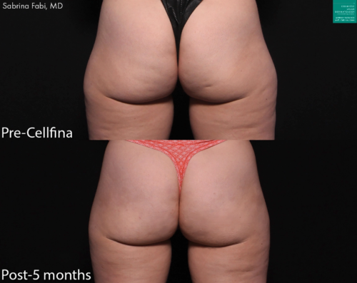 san diego cellulite treatment results