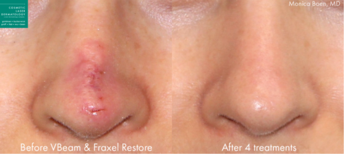 revision scar treatment results in San Diego