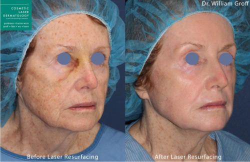 Take 10 laser resurfacing treatment results in San Diego