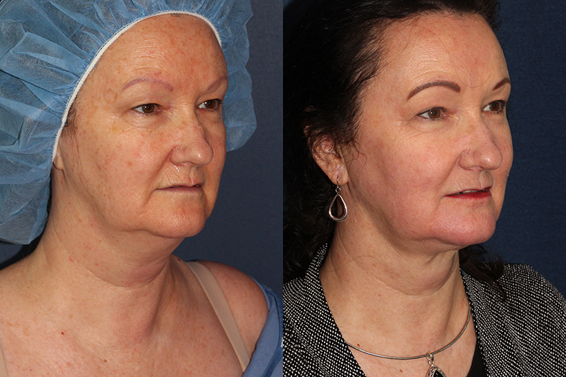 Actual un-retouched patient before and after ThermiTight to address skin laxity under the chin by Dr. Wu. Disclaimer: Results may vary from patient to patient. Results are not guaranteed.