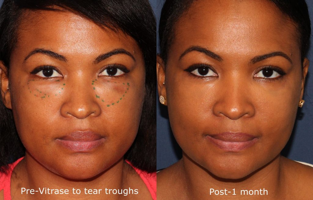 Actual un-retouched patient before and after Vitrase treatment to reverse HA filler in tear troughs by Dr. Groff. Disclaimer: Results may vary from patient to patient. Results are not guaranteed.