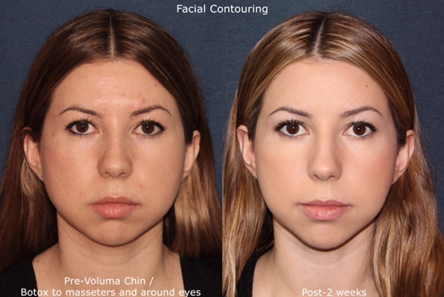 Actual un-retouched patient before and after Botox and Voluma to augment the chin and contour the jawline by Dr. Fabi. Disclaimer: Results may vary from patient to patient. Results are not guaranteed.