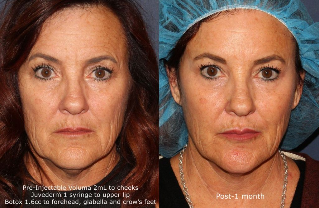 Actual un-retouched patient before and after Voluma, Juvederm and Botox injections for facial rejuvenation by Dr. Fabi. Disclaimer: Results may vary from patient to patient. Results are not guaranteed.