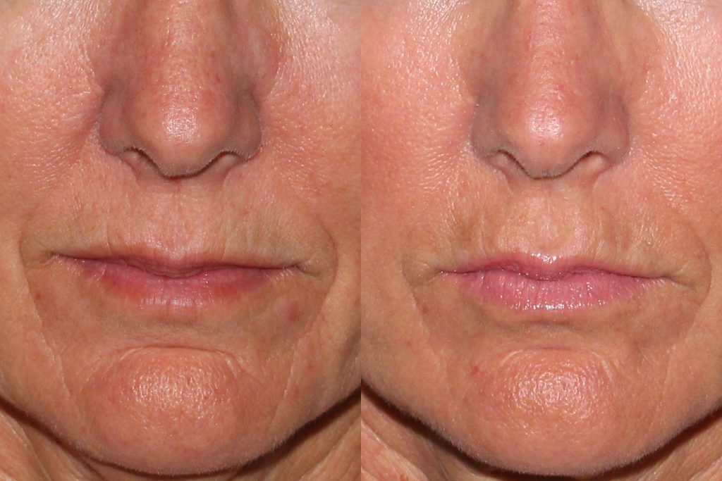 Actual un-retouched patient before and after Belotero injections to treat perioral lines by Dr. Wu. Disclaimer: Results may vary from patient to patient. Results are not guaranteed.