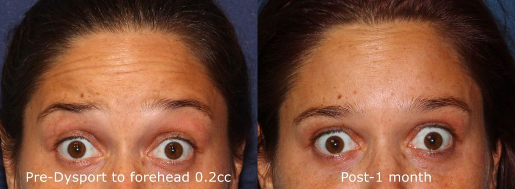Actual un-retouched patient before and after Dysport injections to reduce forehead wrinkles by Dr. Wu. Disclaimer: Results may vary from patient to patient. Results are not guaranteed.