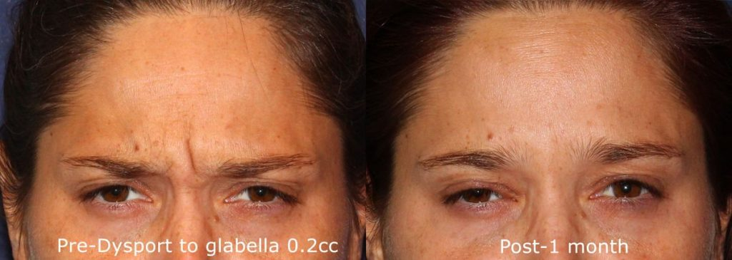 Actual un-retouched patient before and after Dysport treatment for glabellar lines by Dr. Wu. Disclaimer: Results may vary from patient to patient. Results are not guaranteed.