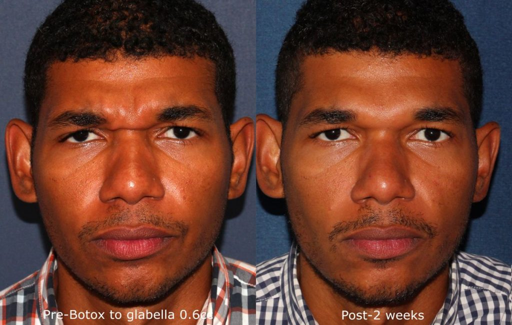 Actual un-retouched patient before and after Botox injections to treat glabellar lines by Dr. Wu. Disclaimer: Results may vary from patient to patient. Results are not guaranteed.