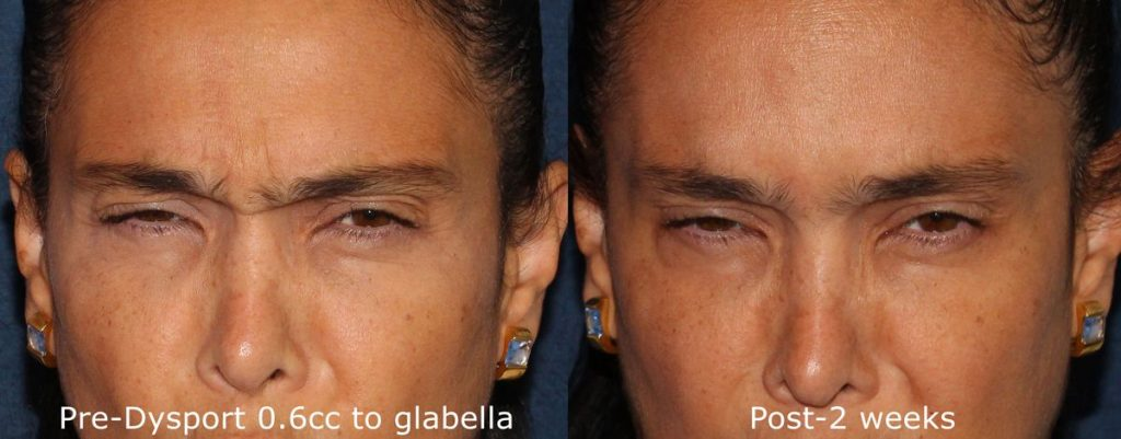 Actual un-retouched patient before and after Dysport injections to treat glabellar lines by Dr. Wu. Disclaimer: Results may vary from patient to patient. Results are not guaranteed.