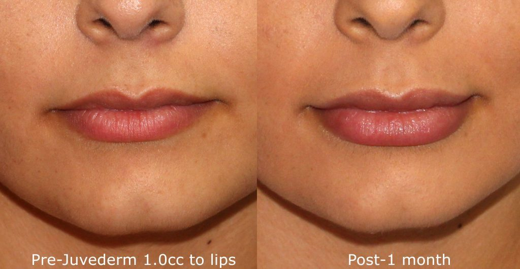 Actual un-retouched patient before and after filler treatment for lip augmentation by Dr. Wu. Disclaimer: Results may vary from patient to patient. Results are not guaranteed.