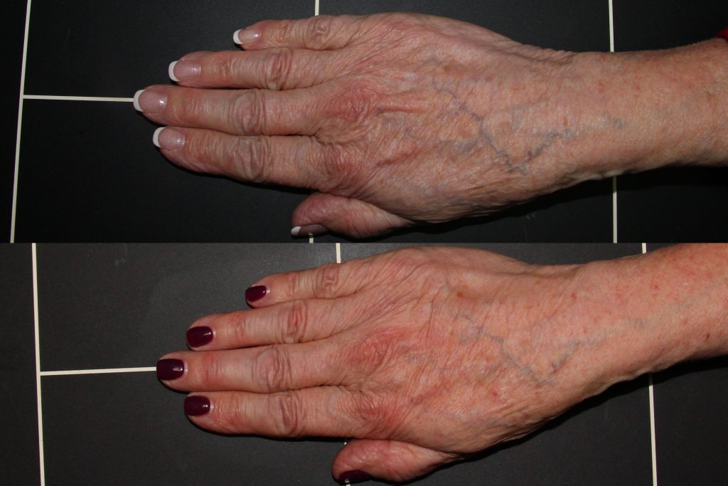 Actual un-retouched patient before and after Radiesse injections to rejuvenate the hands by Dr. Wu. Disclaimer: Results may vary from patient to patient. Results are not guaranteed.