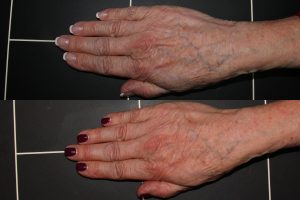 Before and after front image of Radiesse treatment on a female's hands performed by Dr. Wu at our San Diego medical spa
