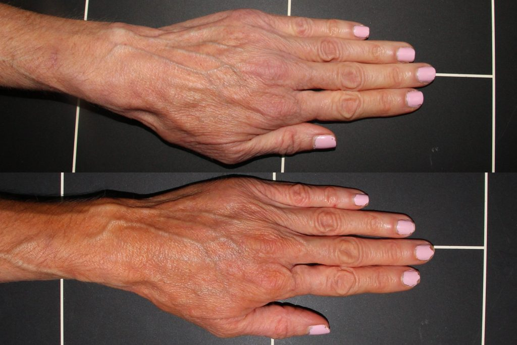 Actual un-retouched patient before and after Radiesse injections for hand rejuvenation by Dr. Wu. Disclaimer: Results may vary from patient to patient. Results are not guaranteed.