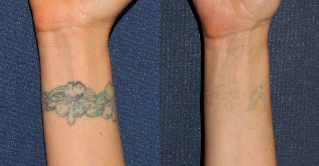 Actual un-retouched patient before and after laser treatment for tattoo removal by Dr. Wu. Disclaimer: Results may vary from patient to patient. Results are not guaranteed.
