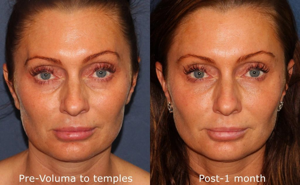 Actual un-retouched patient before and after Voluma injections to augment the temples by Dr. Wu. Disclaimer: Results may vary from patient to patient. Results are not guaranteed.