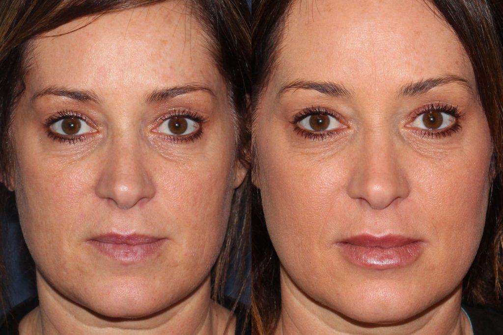 Actual un-retouched patient before and after Voluma injections to augment the cheeks by Dr. Wu. Disclaimer: Results may vary from patient to patient. Results are not guaranteed.