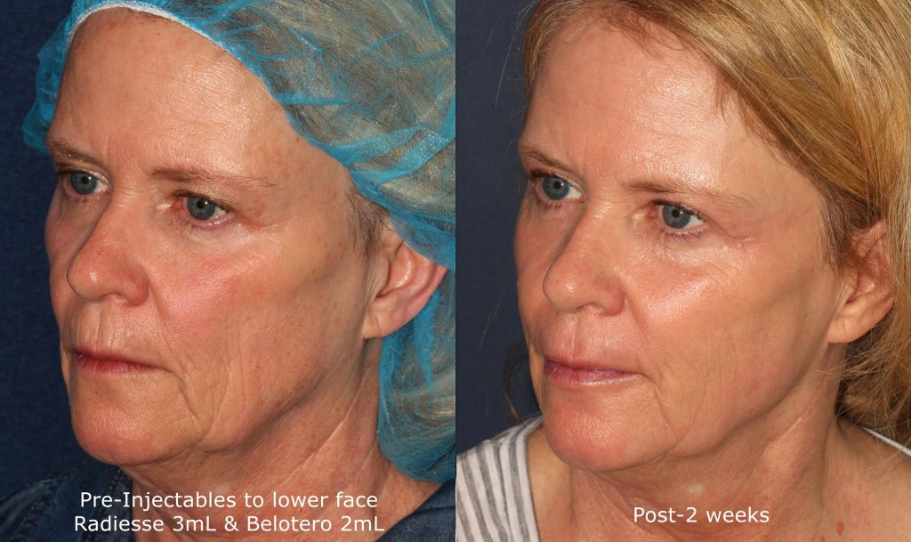 Actual un-retouched patient before and after Radiesse and Belotero injections to reduce wrinkles in the lower face by Dr. Wu. Disclaimer: Results may vary from patient to patient. Results are not guaranteed.