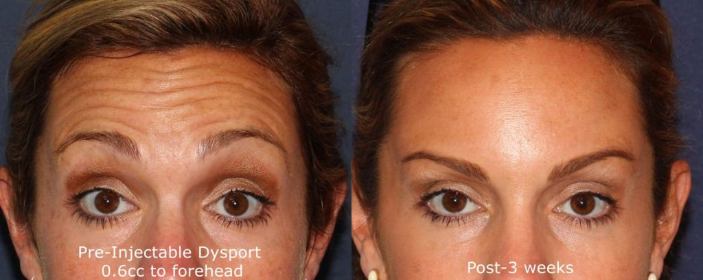Actual un-retouched patient before and after Dysport injections to treat forehead lines by Dr. Wu. Disclaimer: Results may vary from patient to patient. Results are not guaranteed.