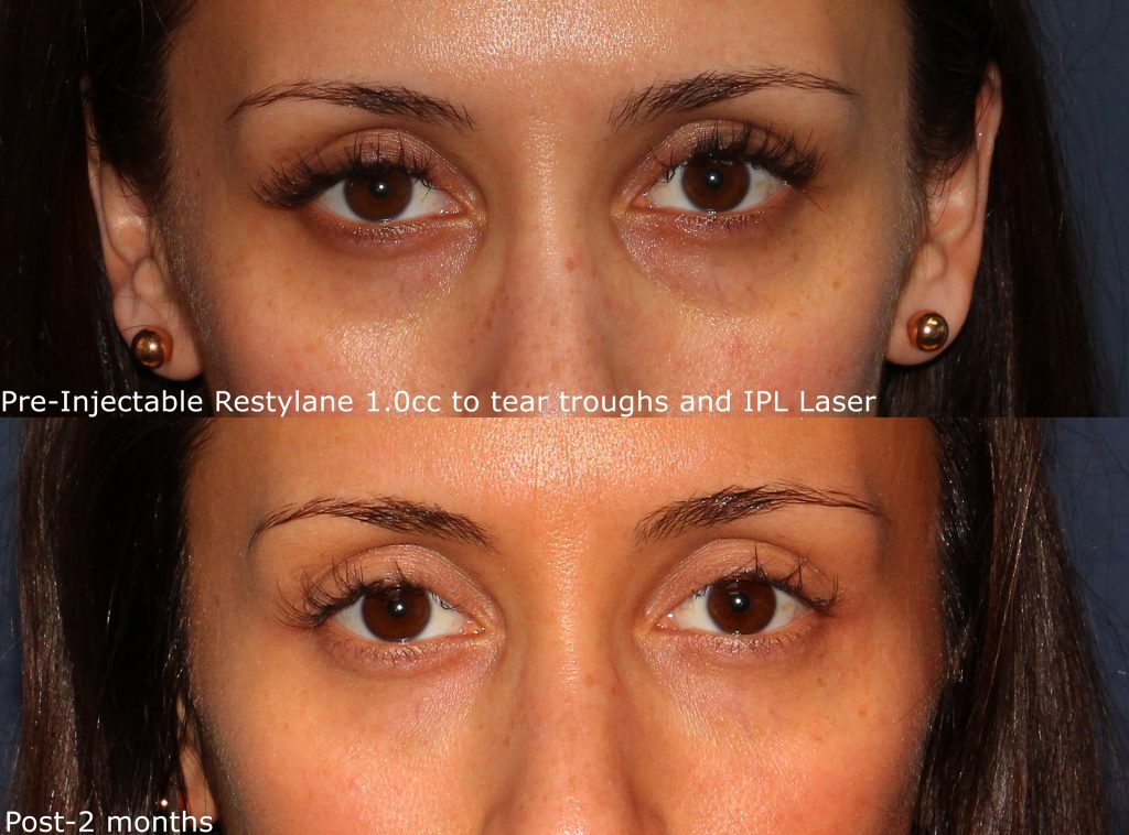 Actual un-retouched patient before and after Restylane injections to reduce eye bags and dark circles by Dr. Wu. Disclaimer: Results may vary from patient to patient. Results are not guaranteed.