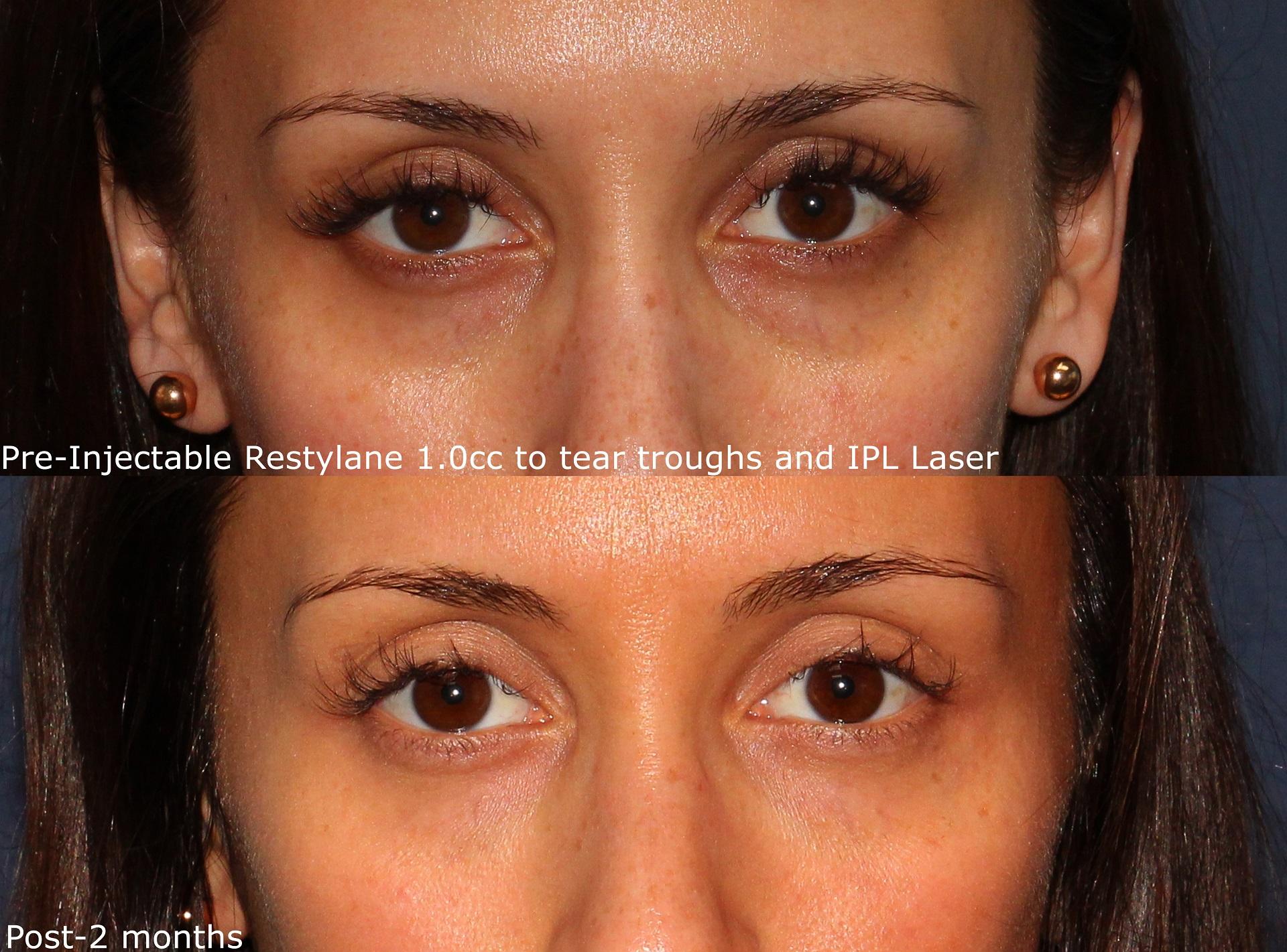 Undereye Bags Gaunt Fix Cosmetic Clinic Dublin