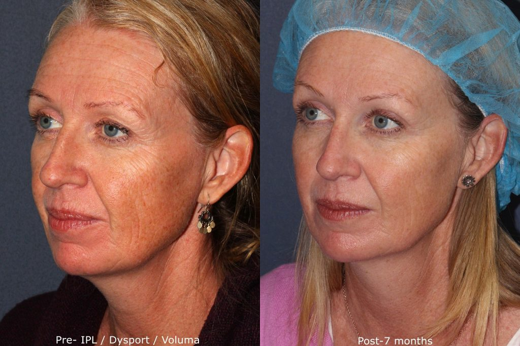 Actual un-retouched patient before and after Dysport, Voluma and IPL for facial rejuvenation by Dr. Fabi. Disclaimer: Results may vary from patient to patient. Results are not guaranteed.