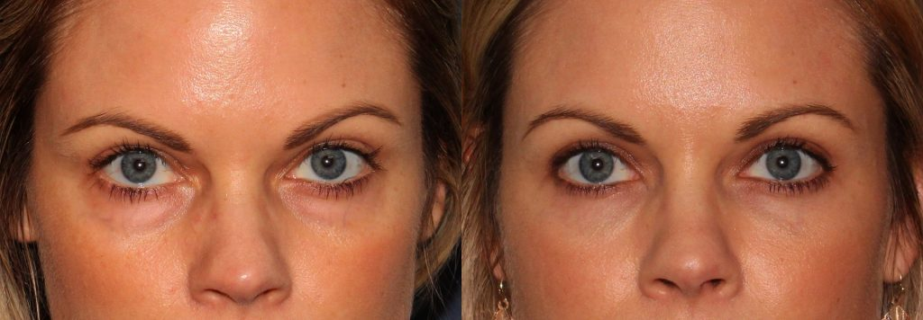 Actual un-retouched patient before and after Voluma injections to treat dark circles under the eyes by Dr. Groff. Disclaimer: Results may vary from patient to patient. Results are not guaranteed.