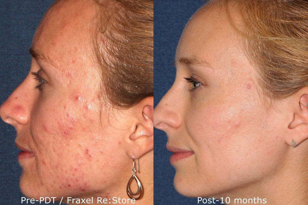 Actual un-retouched patient before and after Fraxel laser and photodynamic therapy to treat acne scars by Dr. Fabi. Disclaimer: Results may vary from patient to patient. Results are not guaranteed.