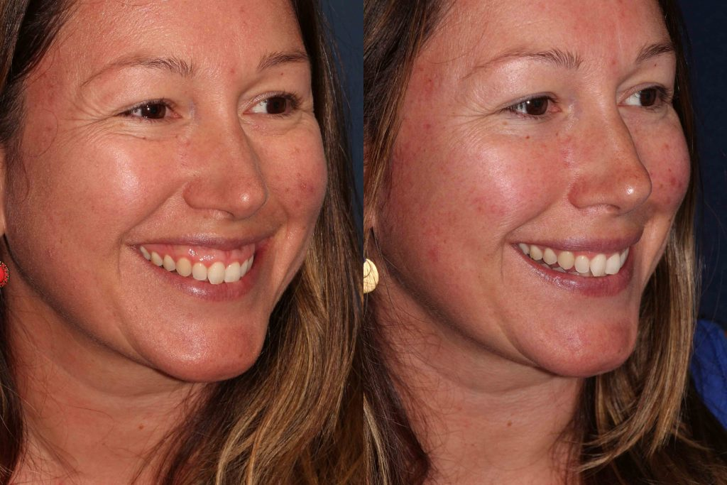 Actual un-retouched patient before and after Botox injections to reduce a gummy smile by Dr. Butterwick. Disclaimer: Results may vary from patient to patient. Results are not guaranteed.