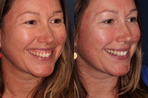 Before and after oblique image of Botox treatment on a female's gummy smile performed by Dr. Butterwick at our San Diego medical spa