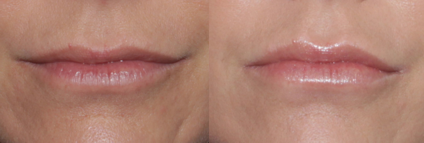 Actual un-retouched patient before and after Juvederm injections to rejuvenate the lower face and lips by Dr. Fabi. Disclaimer: Results may vary from patient to patient. Results are not guaranteed.