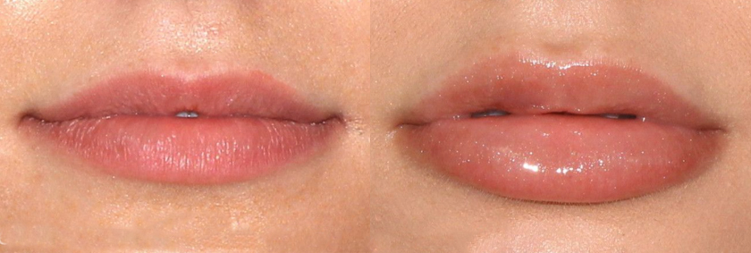 Actual un-retouched patient before and after filler treatment for lip augmentation by Dr. Fabi. Disclaimer: Results may vary from patient to patient. Results are not guaranteed.