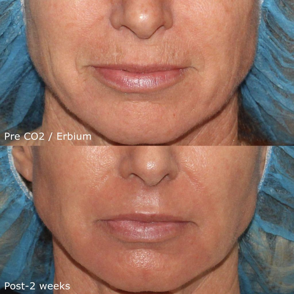 Actual un-retouched patient before and after CO2/Erbium laser treatment for fine lines and wrinkles by Dr. Groff. Disclaimer: Results are not guaranteed.