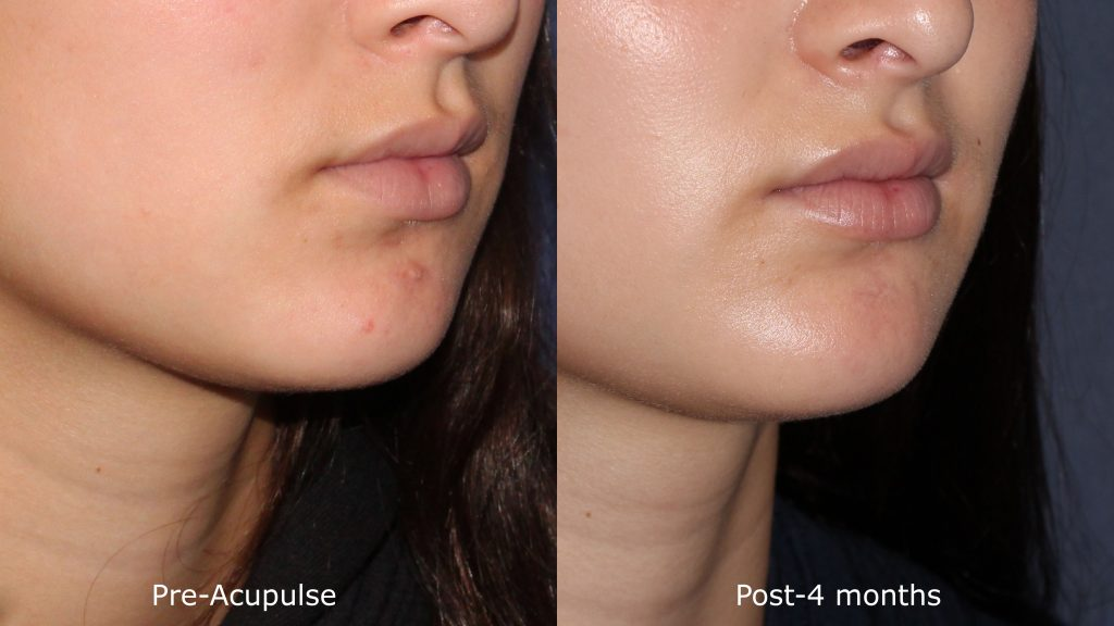 Actual un-retouched patient before and after Acupulse laser to treat a scar from a rugby accident by Dr. Goldman. Disclaimer: Results are not guaranteed.