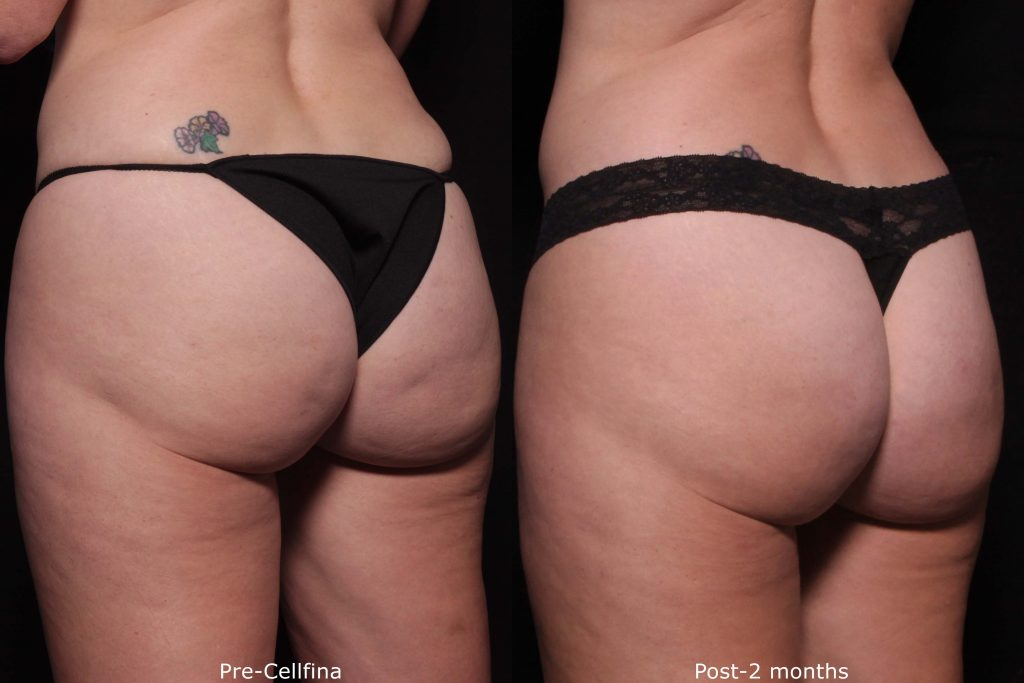 Actual un-retouched patient before and after Cellfina to treat cellulite by Dr. Fabi. Disclaimer: Results are not guaranteed.