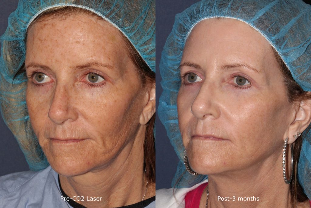 Actual un-retouched patient before and after CO2 laser to treat sun damage by Dr. Wu. Disclaimer: Results are not guaranteed.