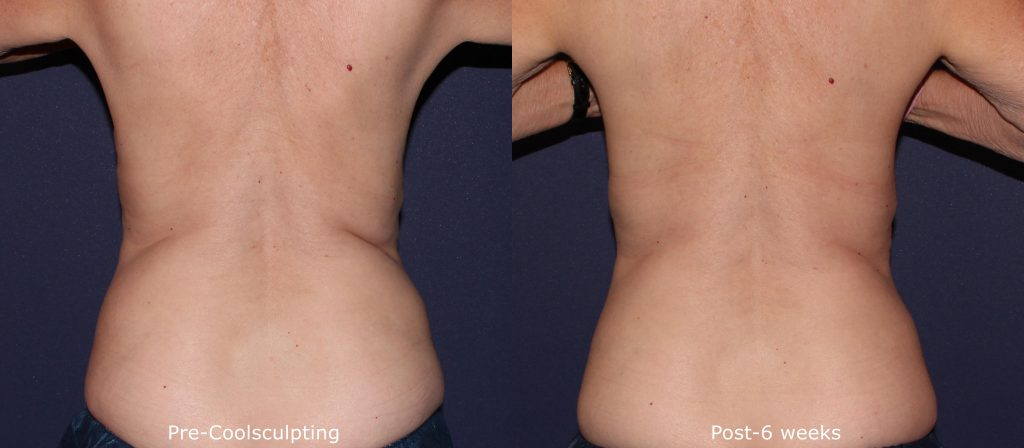 Actual un-touched patient before and after Coolsculpting to reduce fat on the lower back by Leysin Fletcher, PA-C. Disclaimer: Results may vary from patient to patient. Results are not guaranteed.